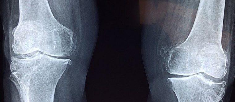 שבר במהלך אימון: המדריך המלא להתמודדות וטיפול